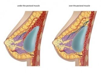 Dass es silikonowaja die Brust oder gegenwärtig besser ist