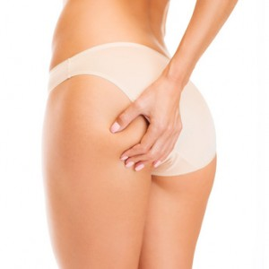 Cellulite – Wissenswertes, Mythen und Fakten