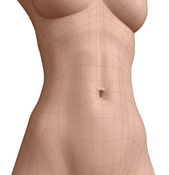 Bauchstraffung, Abdominoplastik, Bauch